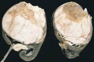 rhabdomyosarcoma of the bladder picture 7