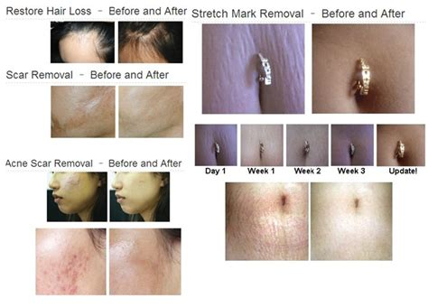 alokem 75 gel for stretch marks how much picture 10