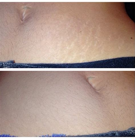 cover stretch marks picture 2