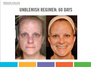 rodan and fields for stretch marks picture 6