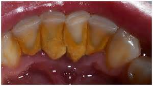 herbs dussolve tooth plaque picture 5