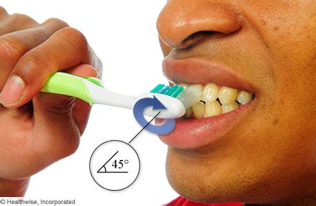 h dental decay picture 8