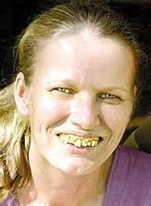 bad teeth picture 18