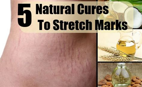 cures for stretch marks picture 13