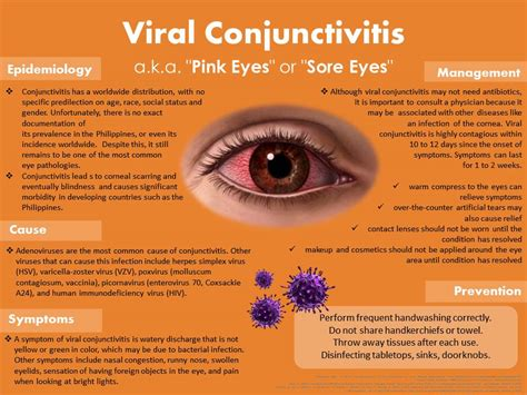 symptoms viral conjunctivitis bacterial conjunctivitis picture 6