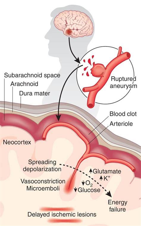 Aneurysm highl blood pressure picture 3