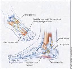differential diagnosis fifth toe joint pain picture 10