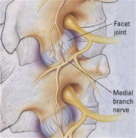 facet joint nerve eblasion picture 1