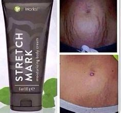 dmae work on stretch marks picture 15