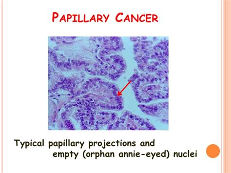 encapsulated papillary thyroid cancer picture 6