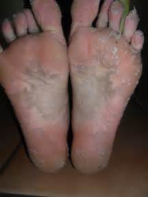 dead skin on feet picture 1