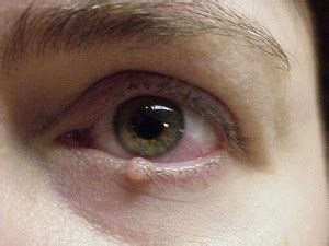 eye skin growth picture 7