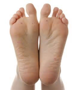 types of warts guide causes,symptoms picture 10
