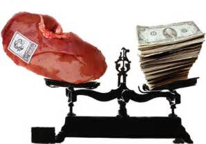 kidney buyers picture 10