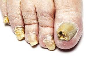 foot fungus picture 3