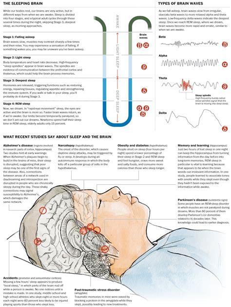 chronic sleep deprivation picture 9