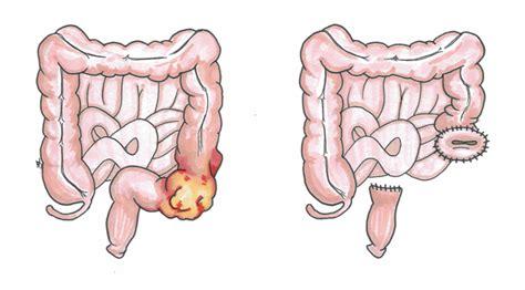 colon pockets picture 6