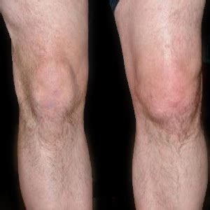 joint effusion knees picture 11