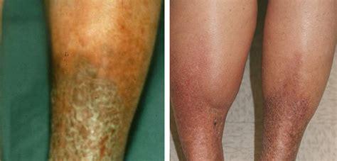 hemosiderin skin discoloration picture 2