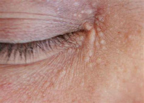 calcium deposits on skin picture 13