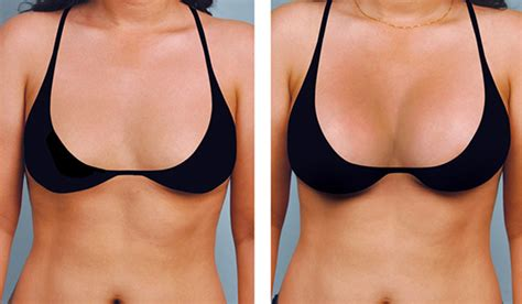 breast enhancement via fat transfer picture 1