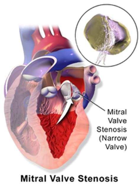 enlarged mitral valve herbal treatment picture 1