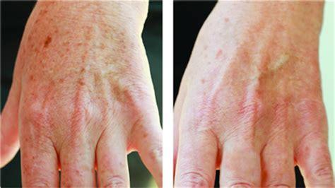 kakadu plum dark spot treatment picture 6