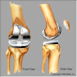 knee joint replacement surgery picture 5