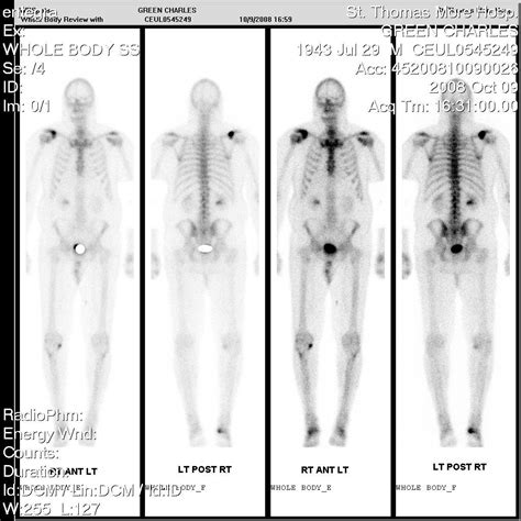 full bladder on a bone scan picture 18
