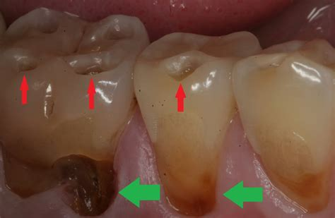 acid reflux in infants teeth picture 1
