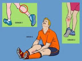 diagnose muscle tears picture 19