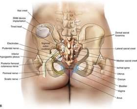 implanted bladder stimulation picture 7