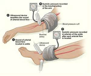 can i buy circu aid for blood circulation picture 9