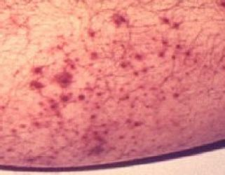 thickened skin and cyst picture 6