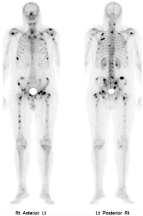full bladder on a bone scan picture 3