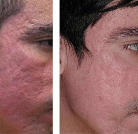 acne scar revision in encino picture 9
