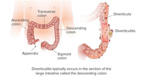 colon infection picture 5