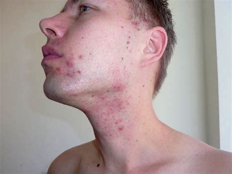 adolescent acne picture 10