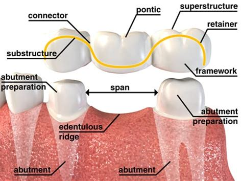 cost of a bridge teeth picture 3
