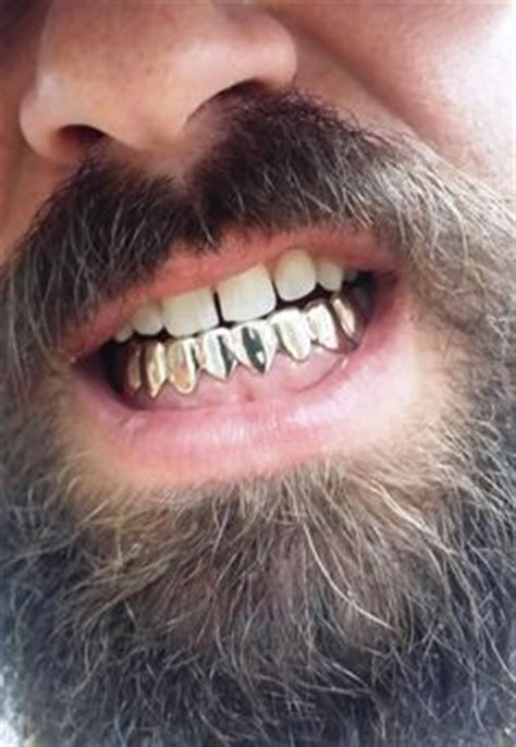 fulton street gold teeth picture 6