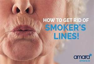 smokers skin picture 1