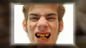 antibiotic discoloring teeth picture 2