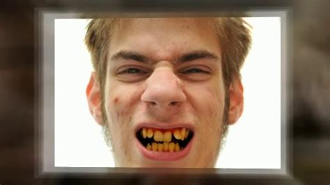 antibiotic discoloring teeth picture 6