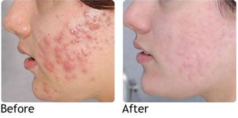 Acne cure picture 9