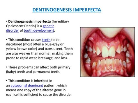 genetic disorder permanent teeth picture 2