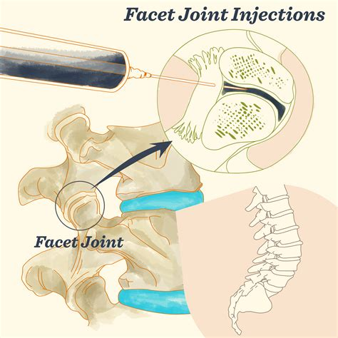 facet joint injection picture 15