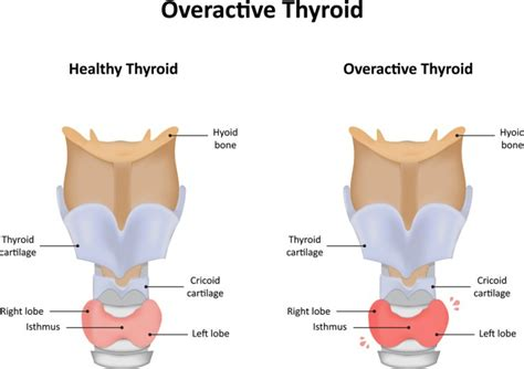 argentina thyroid glandular company picture 5