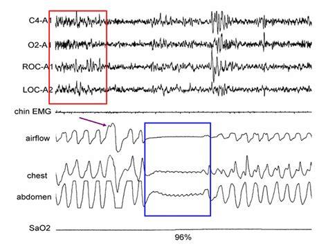 central sleep apnea picture 5