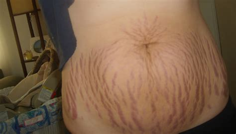 will my stretch mark go away picture 1