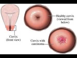 sintomas ng cervical cancer picture 1